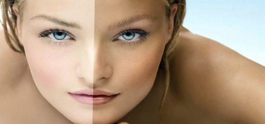 Отбеливание кожи в домашних условиях